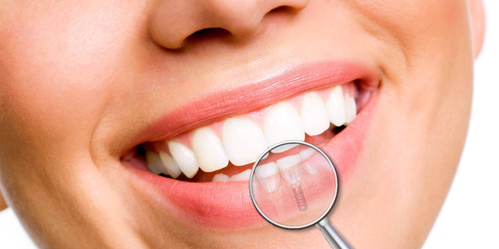implantologia_orale